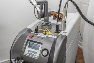 Laser gegen Besenreisser Blutschwämchen Couperose Tattoo farbige