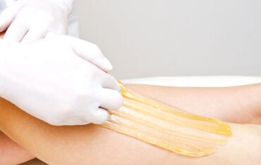 Hair removal with waxing in the intimate or armpit area